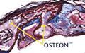 osteon-07